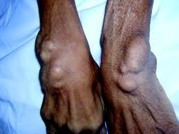 Is there any new treatments for tumoral calcinosis other than surgery and control of phosphate levels?