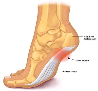 Chronic plantar fasciiitis plus high arches--doctor put foot in walking cast 7 days ago and pain has been much worse since  then--is cast a mistake?