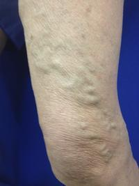 Can varicose veins cause pain for someone even he did not do any exercise and is at rest?