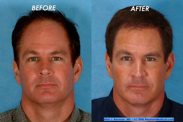Can you tell me more about bosley hair transplant surgery?