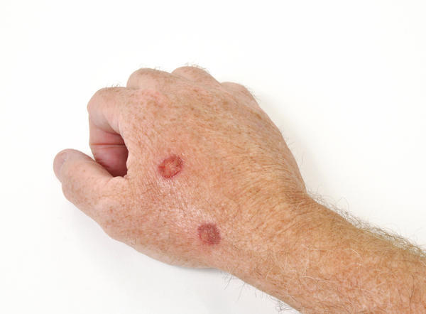 how to get rid of seborrheic keratosis