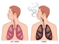 How can I stop smoking!