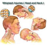 Neck swelling from possible whiplash injury?