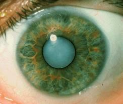 What is a condition called senile cataract.  Can you please explain it?