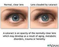 How can we treat cataracts generally nowadays?
