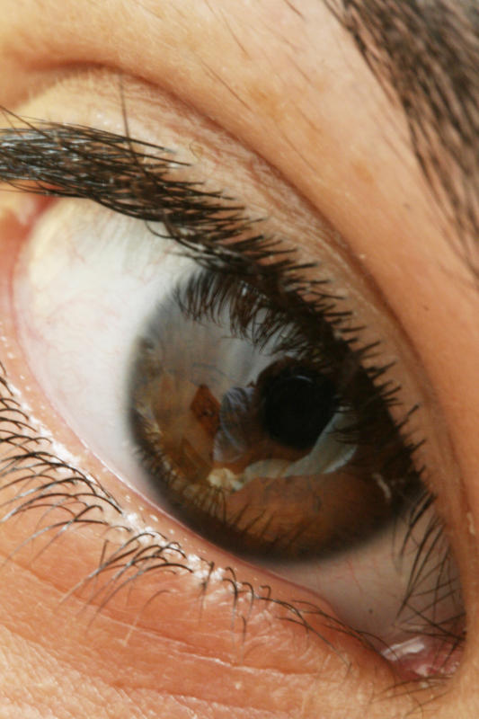 "14 male.  Headache x 4 days.  Says left eye ""dim"" today. ""pressure"" in forehead & behind eye. No injury, nausea/vomit, photosensitivity. Wears glasses?"