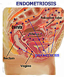 What is thickened echogenic endometrium?