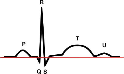 What does isolated narrow Q wave in lead 3 mean, flat t waves across all leads, mild sigmoid septal bulge. Does this all relate to hole in heart