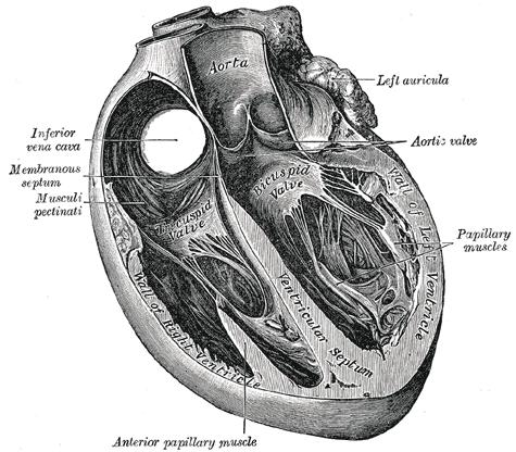 """What does a """"mildly dilated right atrium"""" indicate?"""