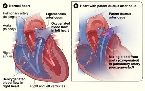 Patent ductus arteriosus and tricuspid valve leak, what does this mean?