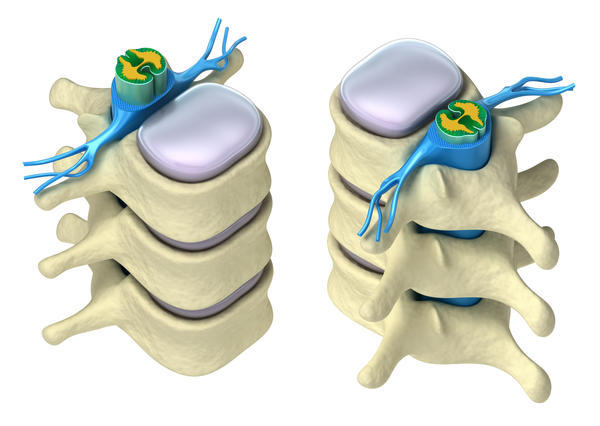 Does a pinched nerve C7 pressured on the root by a herniated disc will damage muscles that it support in the arm and hand?