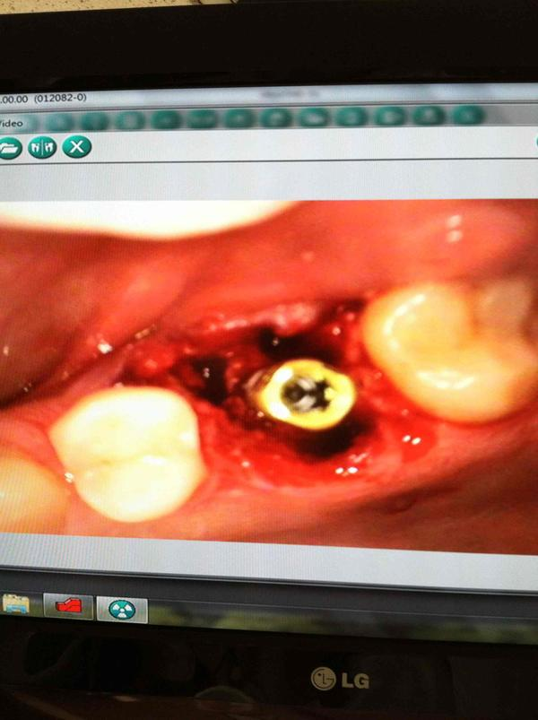 I had a tooth extracted yesterday for a implant. Tooth 12 to be exact. They put in bone chips. How long does this process take?