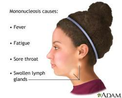 What's the symptom difference of mono and strep throat.?