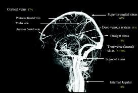 Does MRDTI have better image quality than a CAT/CT venogram?