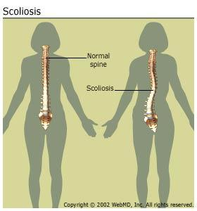 Could scoliosis cause mild to severe back pain and severe tension headaches?