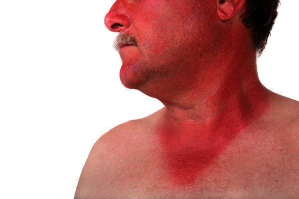 What to do if I got sunburnt and my lower neck and shoulders are swollen!?