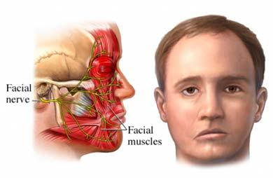 Can anyone tell me the difference between bell's palsy and facial palsy or they are the same?
