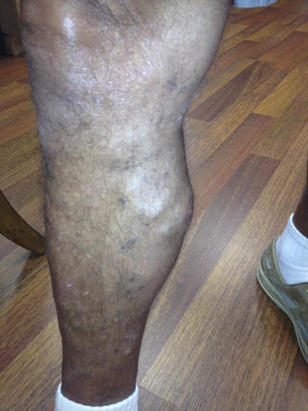 What is a collateral (nonvaricose) superficial vein? Is it just a straight vein that sticks out?