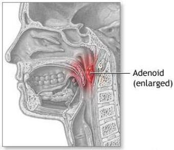 Snoring After Adenoids Have Been Removed - Doctor answers on HealthTap