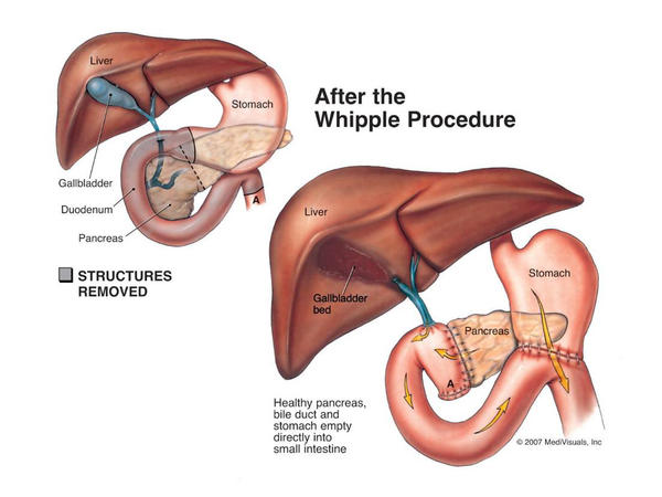Is there a surgical procedure for pancreatic cancer?