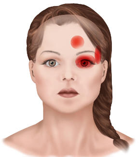 Causes of Headaches in the Left Side Eye | LIVESTRONG.COM