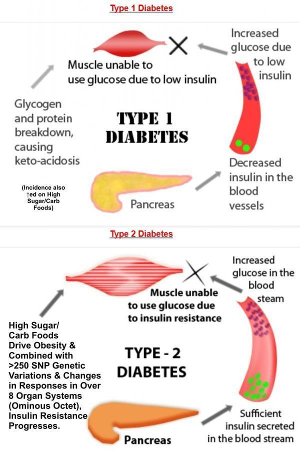 What is different betwen diabetes typ 1 and type2 .i need this information for writing test ?