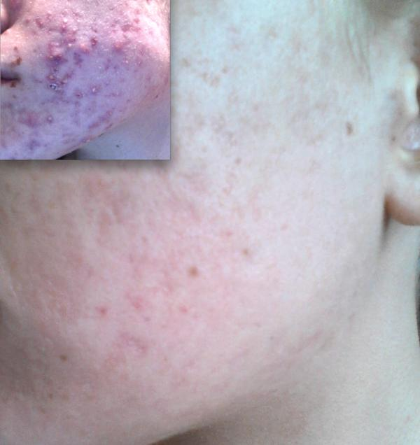 Please tell me if there is any cure for cystic acne?