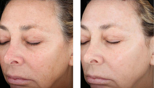 Please help! when is the best time to do a chemical peel?
