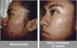 What do you suggest if my doctor told me that I cannot get rid of scars from chemical peel. you have undergo laser treatment?