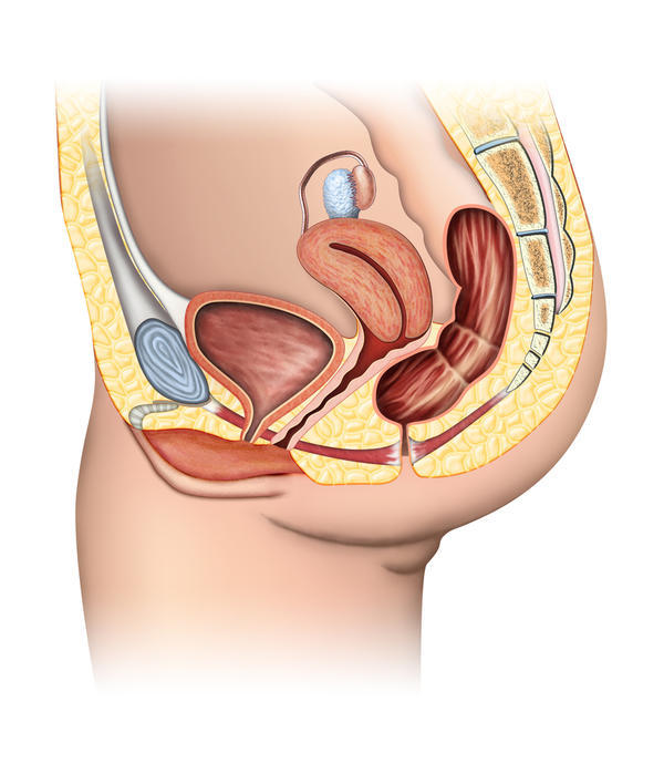 Hard lump between vaginal opening and anus. Causes discomfort. What is it?