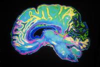 What are percocet withdrawal/detox symptoms?