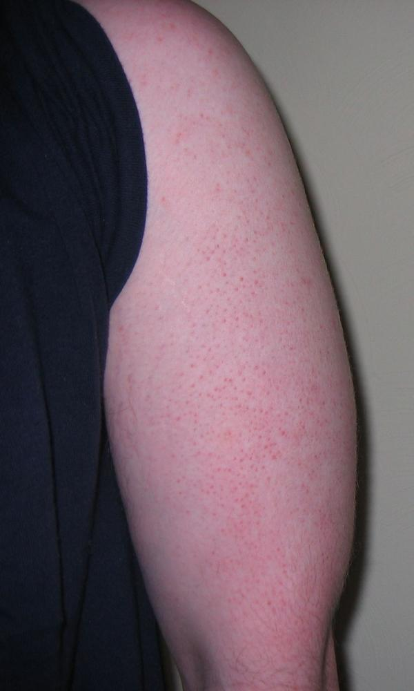 Does picking keratosis pilaris make it worse?