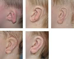 Is it possible to constructing the entire right ear as it looks natural ear?