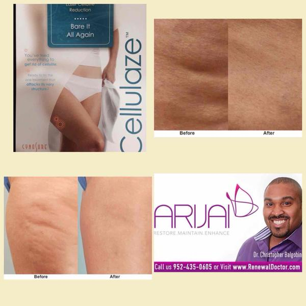 Please help! what is the best cellulite treatment being offered today?