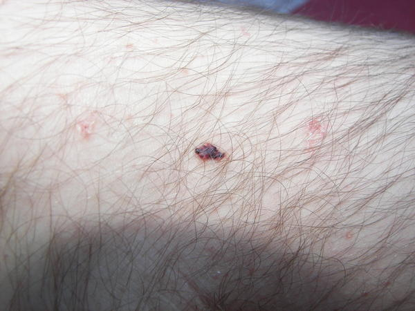 I have little tiny red dots all over my body. They look like moles what are they?