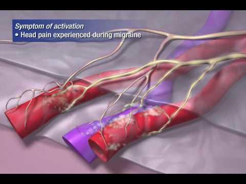 Is coitel migraine curable?