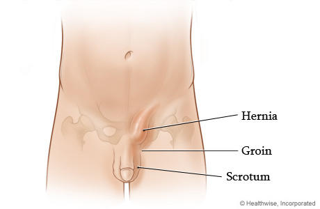 3 CM lump in the left groin area is probably what?