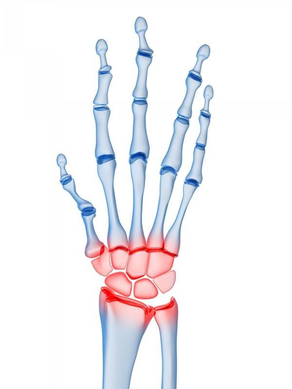 I have right hand bones ache when bent?