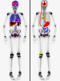 What are the benefits of using technetium-99m for medical tracing instead of x-rays?