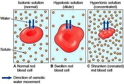 Isotonic hypertonic hypotonic solutions - Answers on HealthTap