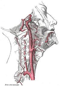 Is this a TIA symtom? I have 700/0 carotid artery narrowing?
