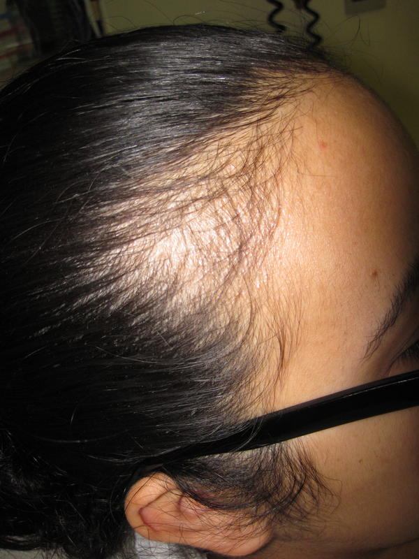 Is norgestrel in my birth control pill bad for my hair?