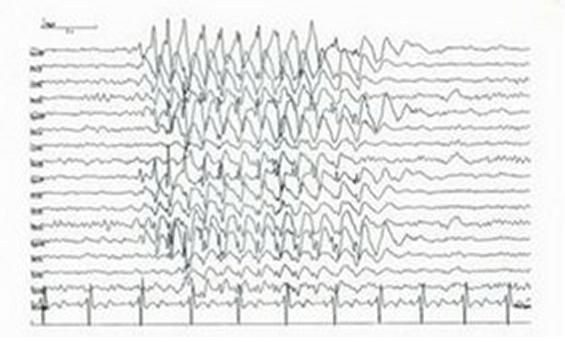 I''ve been experiencing some symptoms. Can it be seizures? I have twitches and sudden jerks often. I have dizziness and once a month blurry vision.