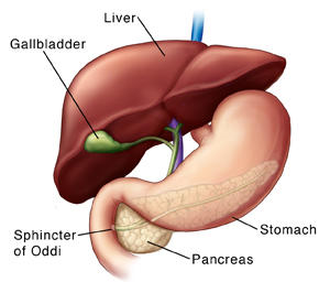 I thnk I hav biliary colic but I don't have a gallbladder. Can I still get gallstones in the duct where the gallbladder used to be?