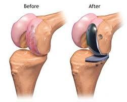Is a patellofemoral replacement the same as a partial knee replacement?