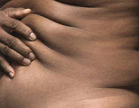 What are signs that pubertal gynecomastia is going away? How can I expedite the process?