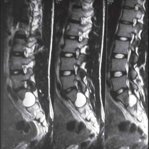 what does listhesis mean