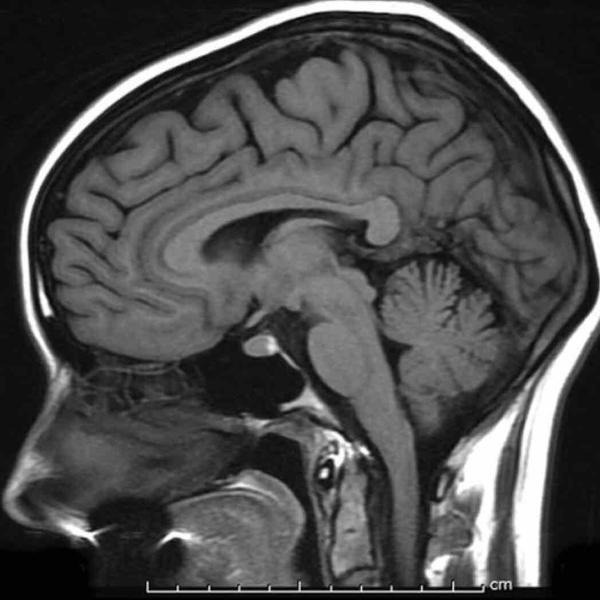 Would an MRI of the brain show where your head and neck meet? Been having pain starting at nape of neck.