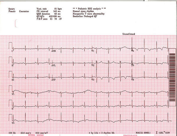 If discontinued Depakote can Long QT interval be cured?