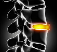Lumbar pain, minimal day pain, intense at night and early morning. No trauma, fever, or trouble urinating, no other symptoms  of kidney stone.